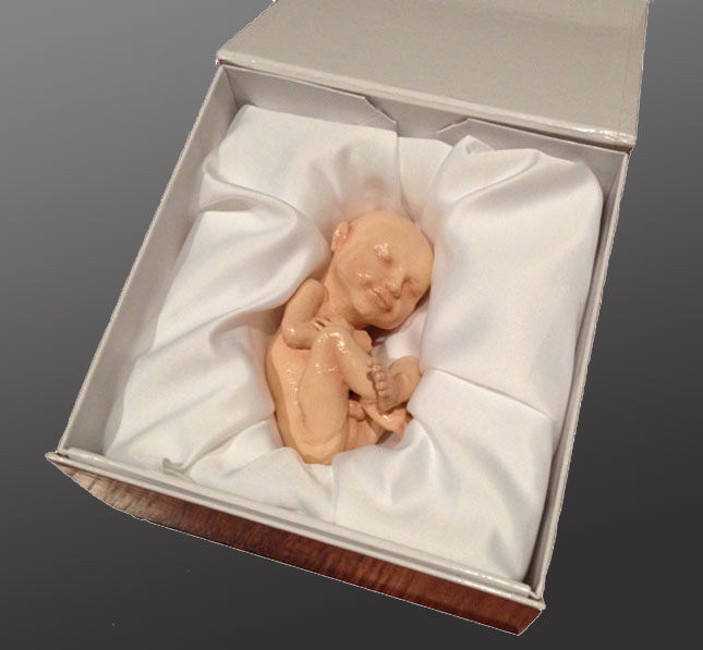 At Home Ultrasound >> 3D Printed Replica Of Your Unborn Fetus