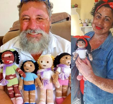 This Grandfather Creates Dolls With Vitiligo To Help Children Feel Better About Their Skin Condition