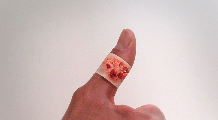 Boo-Boos Band-Aids Pictures of Severe Injuries