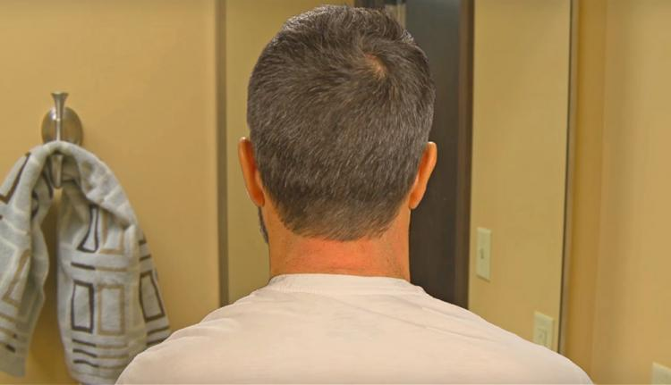Barber's Edge Hairline Trimmer - DIY Neckline trimmer - Lets you trim your own neck