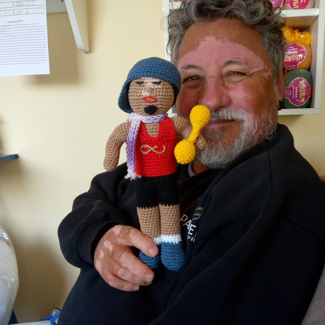 vitiligo crochet dolls - Grandfather with vitiligo skin condition creates crochet dolls