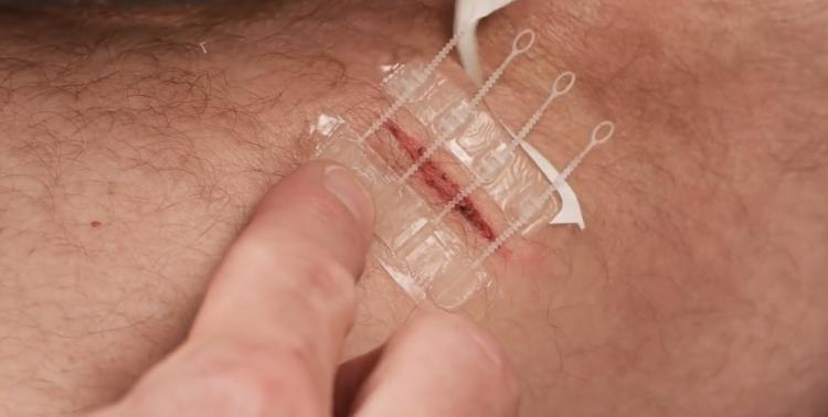 ZipStitch Home Laceration Kit Lets you heal wounds without stitches - DIY Home stitches